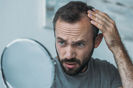 Identifying hair loss and initial considerations